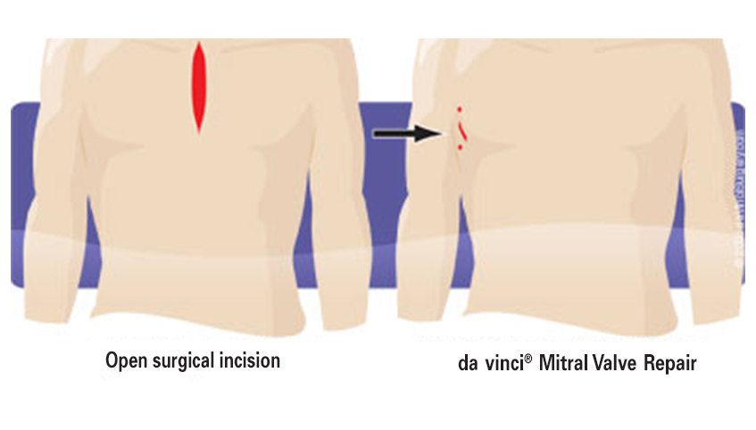 Da Vinci mitral valve repair
