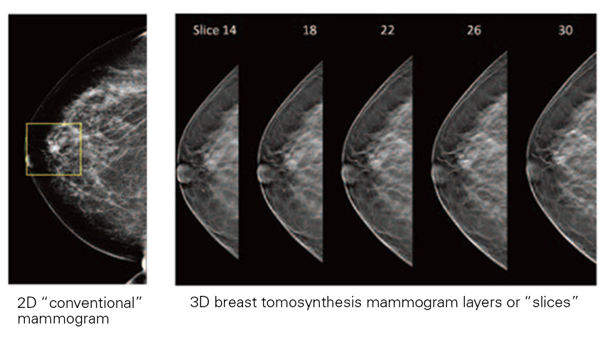 Mammogram images that compare 2D versus 3D.