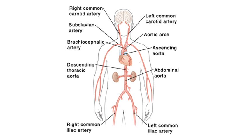 Abdominal aortic aneurysm graphic