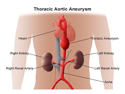 Thoracic aortic aneurysm graphic